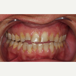 35-44 year old woman treated with Porcelain Veneers before 3241398