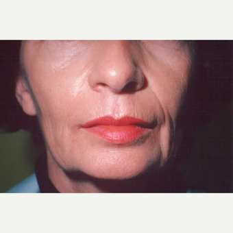 55-64 year old woman treated with Facelift before 3542932