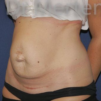 Tummy Tuck before 3599566
