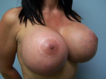 Extra Large Breast Implants - 1400cc 1091955