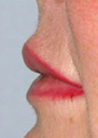 Lip Augmentation after 1072051