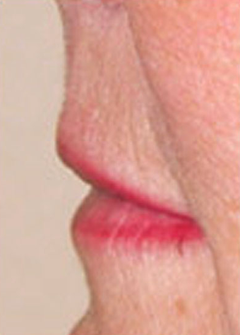Lip Augmentation before 1072051