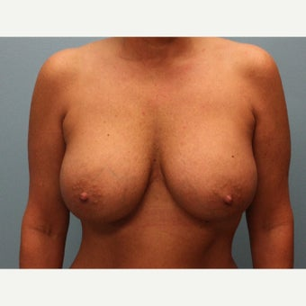 35-44 year old woman treated with Breast Augmentation after 1868945