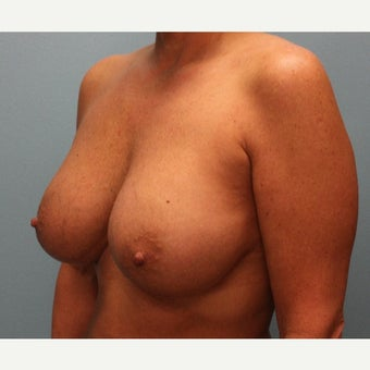 35-44 year old woman treated with Breast Augmentation 1868945