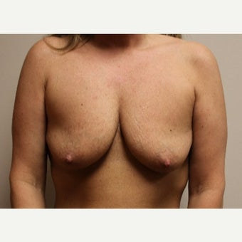 35-44 year old woman treated with Breast Augmentation before 1868945