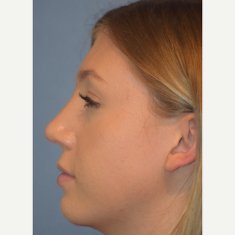 17 or under year old woman treated with Rhinoplasty after 3441817