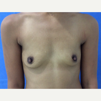 25-34 year old woman treated with Breast Augmentation before 3704738