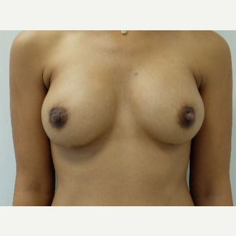 25-34 year old woman treated with Breast Augmentation after 3704738