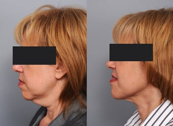 Smartlipo Neck Lift before 210771