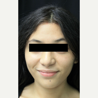 18-24 year old woman treated with Forehead Reduction after 3741765