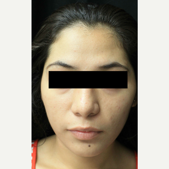 18-24 year old woman treated with Forehead Reduction before 3741765