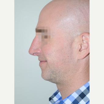 35-44 year old man treated with Rhinoplasty after 3708959