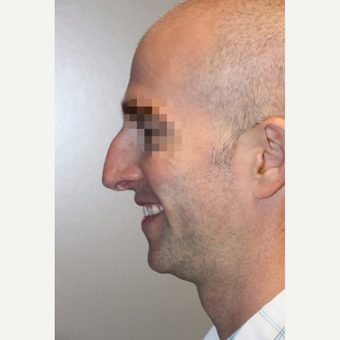 35-44 year old man treated with Rhinoplasty before 3708959