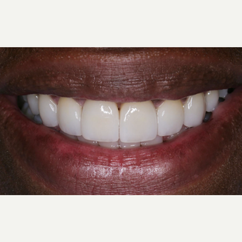 35-44 year old man treated with Porcelain Veneers after 3629777