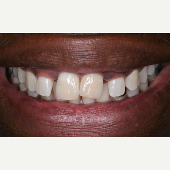 35-44 year old man treated with Porcelain Veneers before 3629777