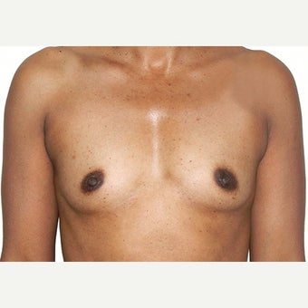 35 year old treated with 410cc Sientra Breast Implants before 2455045