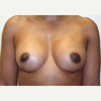 35 year old treated with 410cc Sientra Breast Implants after 2455045