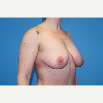 25-34 year old woman treated with Breast Augmentation before 3280661
