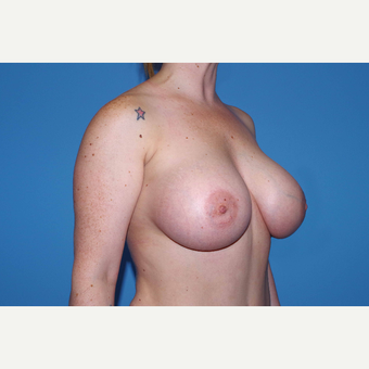 25-34 year old woman treated with Breast Augmentation after 3280661