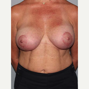 35-44 year old woman treated with Breast Lift after 3141595