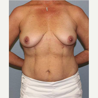 35-44 year old woman treated with Breast Lift before 3141595
