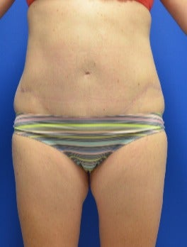 25-34 year old woman treated with Tummy Tuck after 2976233