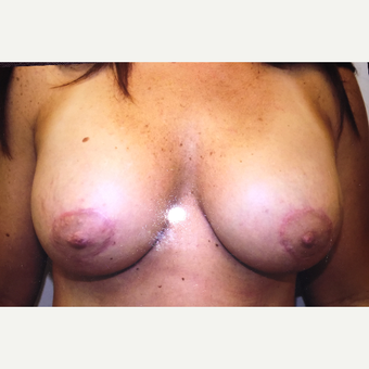 25-34 year old woman treated with Breast Lift after 3384474
