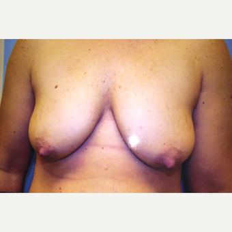 25-34 year old woman treated with Breast Lift before 3384474