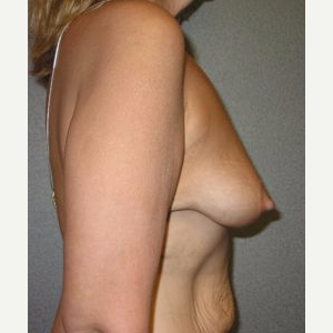 35-44 year old woman treated with Breast Lift with Implants before 3122374