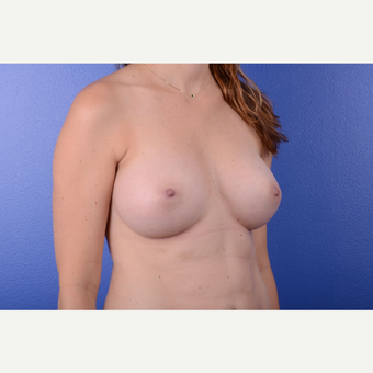 25-34 year old woman treated with Breast Augmentation after 3653032