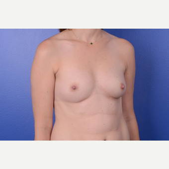 25-34 year old woman treated with Breast Augmentation before 3653032