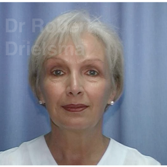 52 year old woman treated with Facelift, endoscopic brow lift and 4 lid blepharoplasty before 1864448