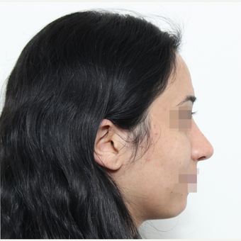 18-24 year old woman treated with Rhinoplasty after 3406536