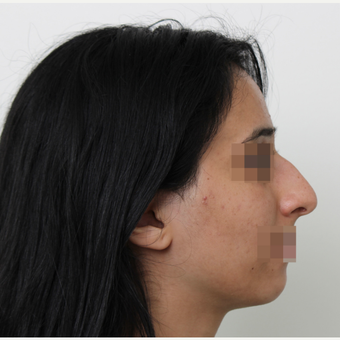 18-24 year old woman treated with Rhinoplasty before 3406536