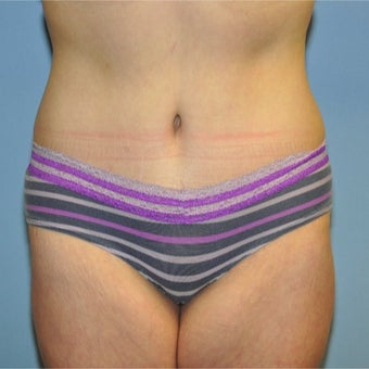 45-54 year old woman treated with Tummy Tuck after 1868369