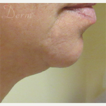 45-54 year old woman treated with Kybella after 3381472