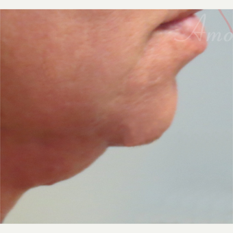 45-54 year old woman treated with Kybella before 3381472