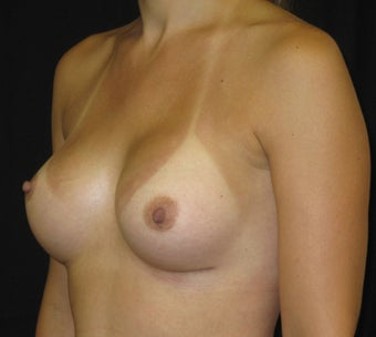 Breast Augmentation in a 34 Year old after 1047143