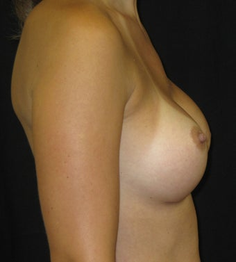 Breast Augmentation in a 34 Year old 1047143