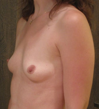 Breast Augmentation in a 34 Year old before 1047143
