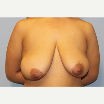 25-34 year old woman treated with Breast Lift with Implants before 3537306