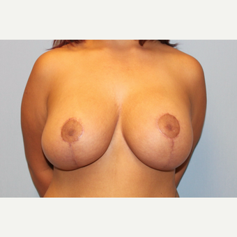 25-34 year old woman treated with Breast Lift with Implants after 3537306