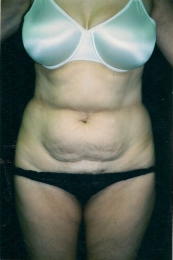 Tummy Tuck before 1372455