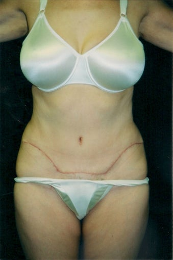 Tummy Tuck after 1372455
