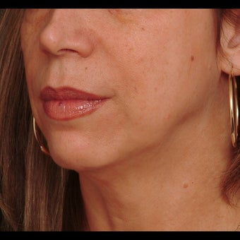 45-54 year old woman treated for Liquid Facelift before 1479632