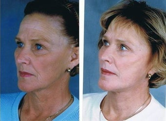 Facelift, Neck lift, Superficial cheek lift, CO2 laser resurfacing  before 83153