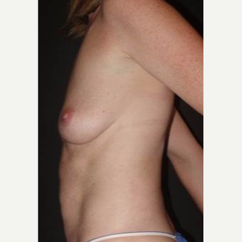 35-44 year old woman treated with Breast Implant Removal after 2923438