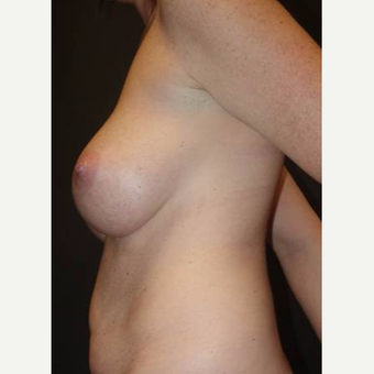 35-44 year old woman treated with Breast Implant Removal before 2923438