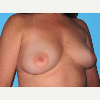 Breast Augmentation before 3732486
