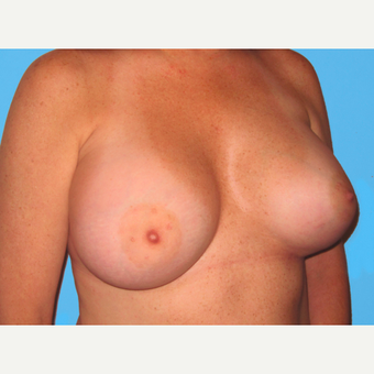 Breast Augmentation after 3732486